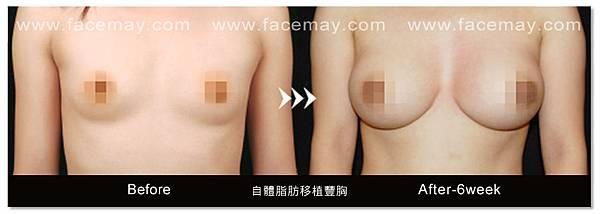 自體脂肪豐胸案例2.jpg