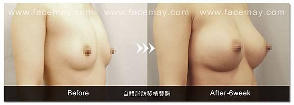 自體脂肪豐胸案例3.jpg