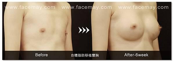 自體脂肪豐胸案例4.jpg