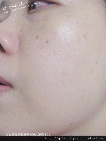 自白肌玻尿酸濃密保濕水凝露-使用後1