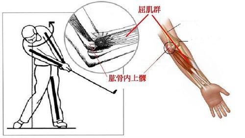 高爾夫球肘 Golf's Elbow與網球肘Tennis Elbow