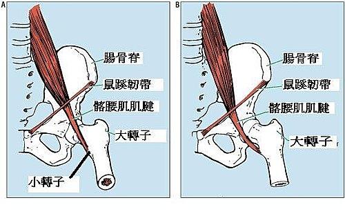 內在型彈響腿(Internal type)