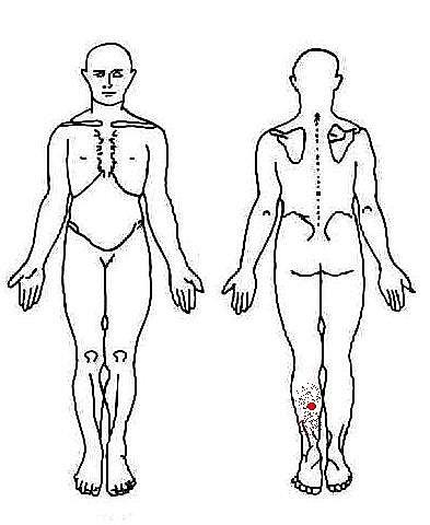 小腿肌肉酸痛