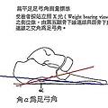 扁平足角度測量方法