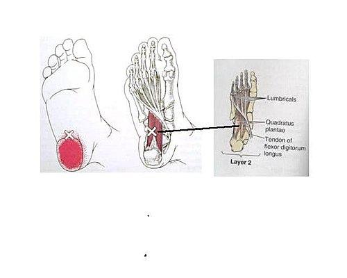 徒手治療對於足底筋膜炎1