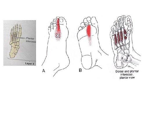 徒手治療對於足底筋膜炎3