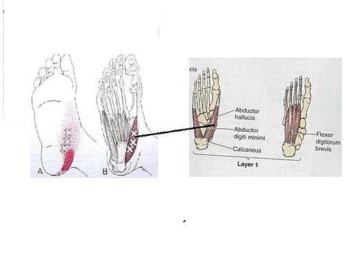 軟組織鬆動術