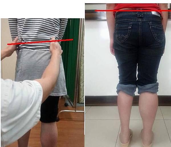 小兒麻痺患者手工訂製鞋墊