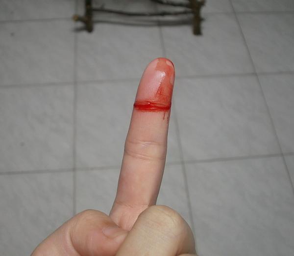 流血.jpg