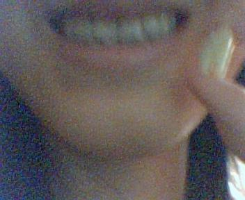 牙 (3).jpg