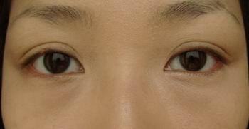調整大小兩眼比較 左眼遮ok.JPG
