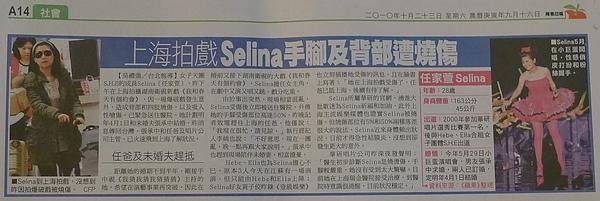 上海拍戲 Selina手腳及背部遭燒傷