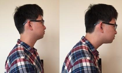 forward head posture.jpg