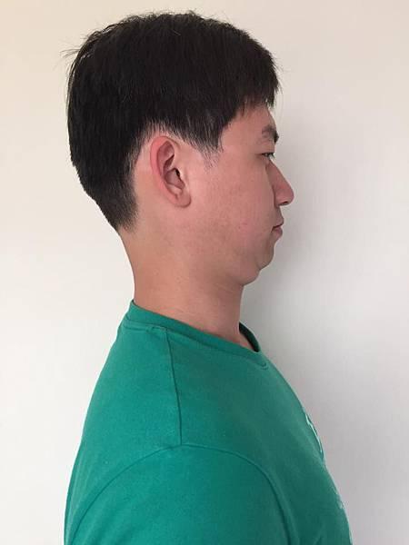 cervical retraction.jpg
