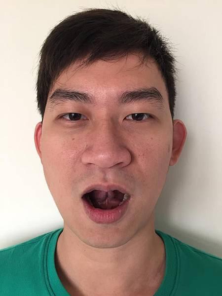 tounge rest.jpg