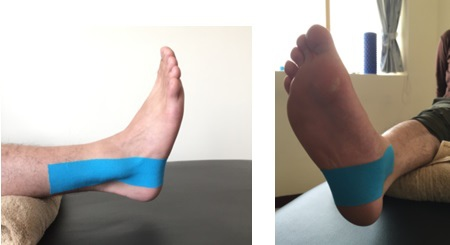 ankle  fixation taping 1.jpg