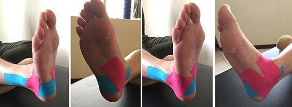 ankle  fixation taping 2.jpg