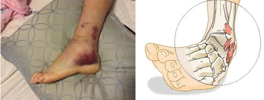 ankle bruise.jpg