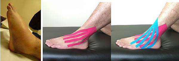 ankle swelling taping.jpg
