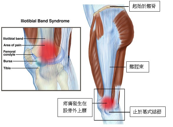 ITB anatomy.jpg