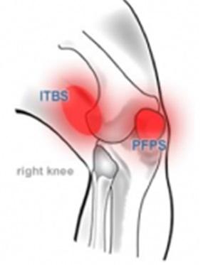 ITBS VS PFPS.jpg