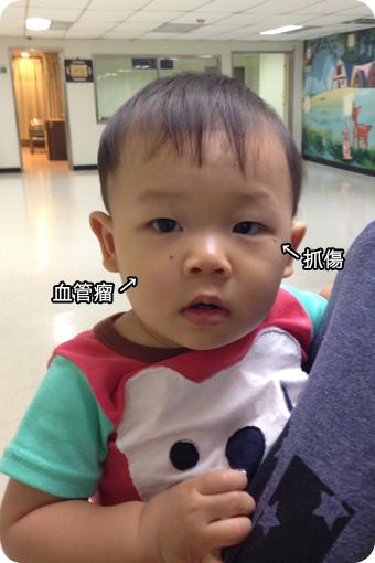 小宇滿1歲打德國麻疹疫苗-01.jpg