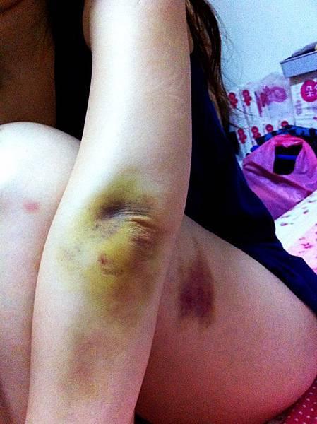 左手肘骨膜發炎腫脹瘀青