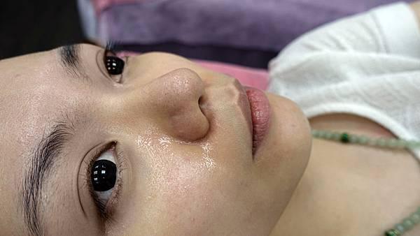 新店維格診所_清粉刺+杏仁酸+保濕
