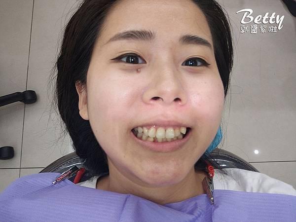 2018矯正牙齒大小事 (1).jpg