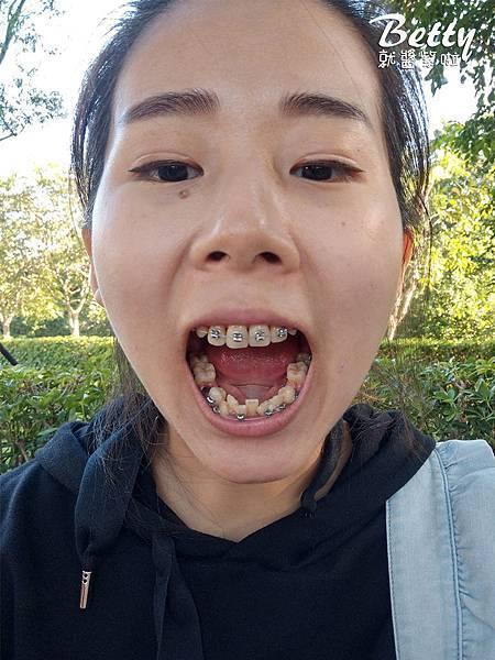 2018矯正牙齒大小事 (46).jpg