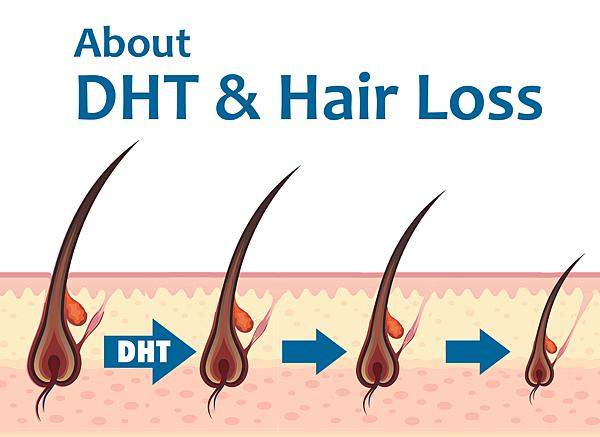 DHT %26; Hair Loss