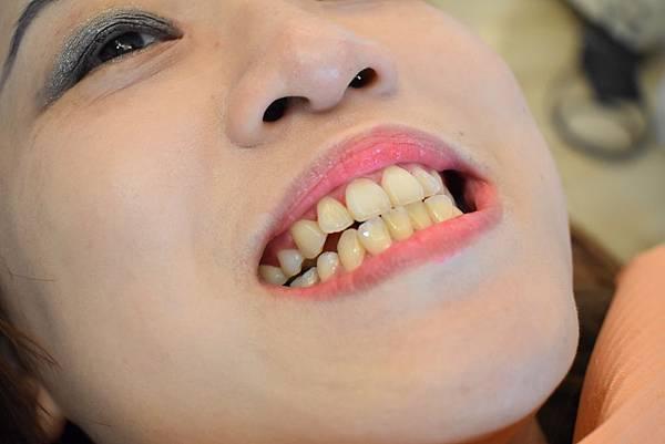 20191226超植牙醫洗牙體驗_191228_0021