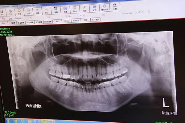 20191226超植牙醫洗牙體驗_191228_0093