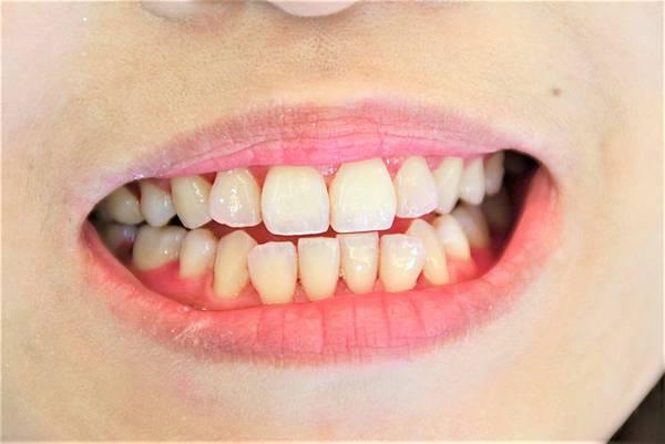 20191226超植牙醫洗牙體驗_191228_0106 (2)