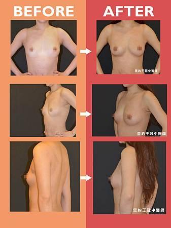 自體脂肪豐胸-02