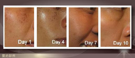 除斑脈衝光10天過程全紀錄