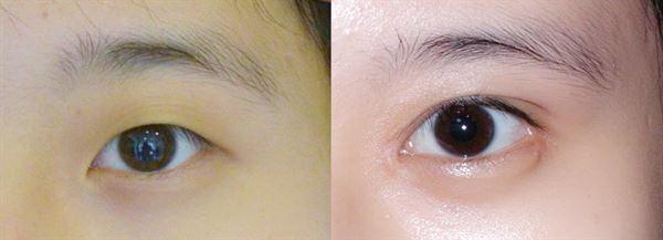 eye-n1.jpg