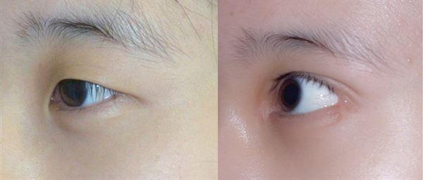 eye-n2.jpg