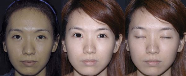 eye-n3.jpg