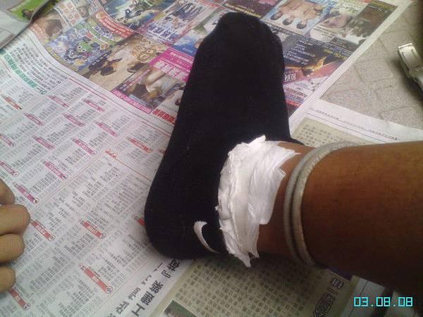 腫起來的左腳...