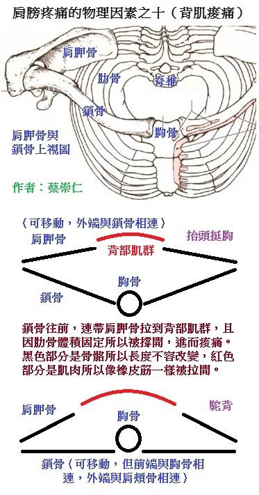 肩膀疼痛的物理因素之十