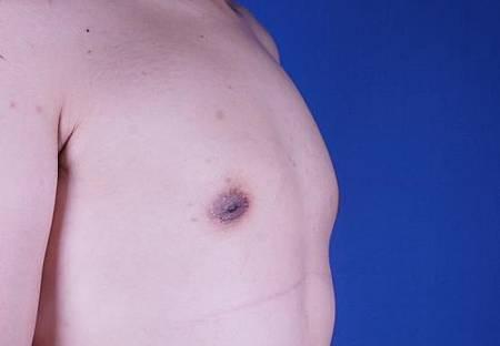 男性女乳6.jpg