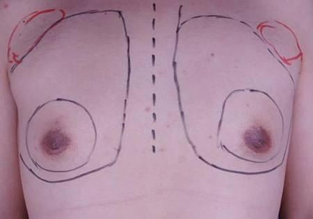 男性女乳3.jpg