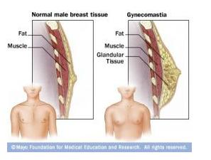 Gynecomastia1.jpg