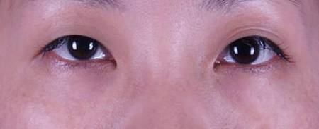 eye16.jpg