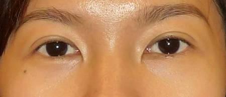 eyell.jpg