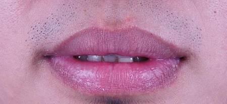 縮唇案例3.jpg