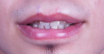 縮唇案例1.jpg