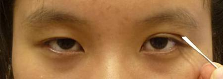 提眼瞼肌手術.jpg