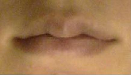 縮唇5.bmp